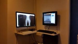 Digitale ontwikkeling röntgenfoto's